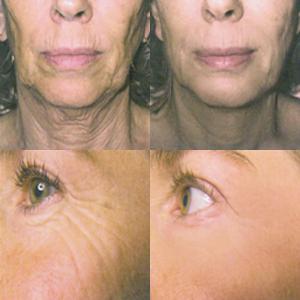 dermatologo Napoli - Francesca Gaudiello - risultati prima dopo
