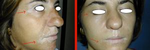 Dermatologia Napoli - trattare la Vitiligine