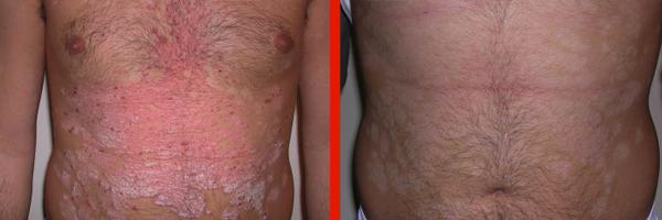 Dermatologo Napoli - Psoriasi