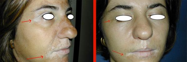 Dermatologo Napoli - Vitiligine
