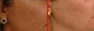 Dermatologo Napoli - Macchie cutanee