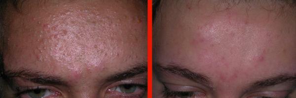 Dermatologo napoli - Acne