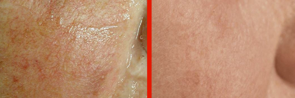 Dermatologo Napoli - Angiomi e rosacea