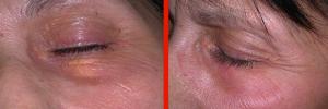 Dermatologo Napoli - Xantelasmi