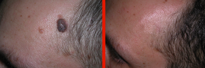 Dermatologo Napoli - Nevi dermici