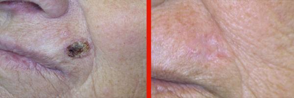 Dermatologo Napoli - Basaliomi