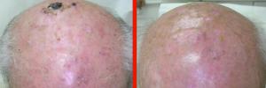 Dermatologo Napoli - Cheratosi attiniche