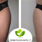 dermatologo-napoli-aversa-cavitazione