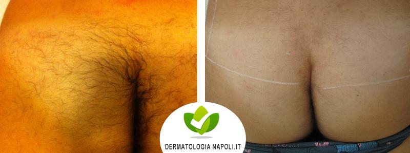 dermatologo-napoli-aversa-laseradioodi