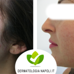 dermatologo-napoli-aversa-needling