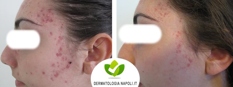 dermatologo-napoli-aversa-terapiafotodinamica