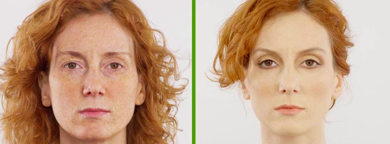 dermatologo napoli prima e dopo