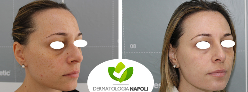 macchie cutanee 4 dermatologo napoli gaudiello