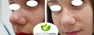 rimozione nevi dermici dermatologo napoli gaudiello